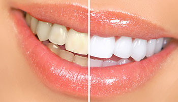 cosmetic-dentist-before-after